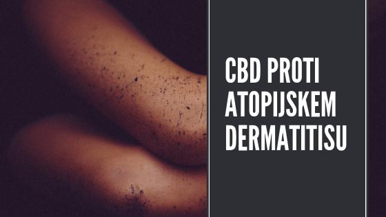 CBD kot alternativa kortikosteroidom pri atopijskem dermatitisu